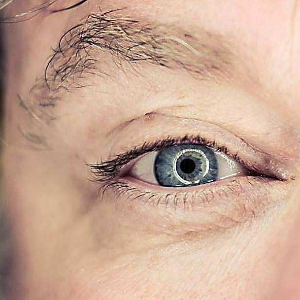 There's a stye in my eye . . . again